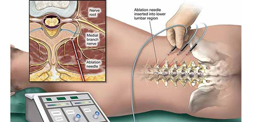 Radiofrequency Lesioning